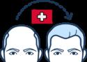 HTV_Haartransplantation_Schweiz